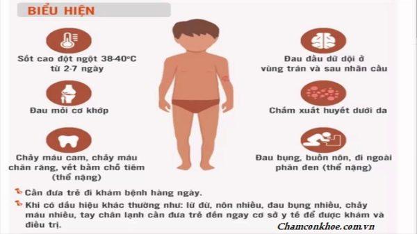 Biểu hiện của trẻ sốt xuất huyết
