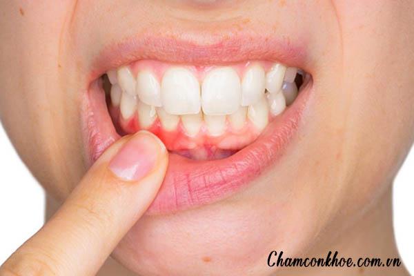 Nguyên nhân gây chảy máu chân răng 1
