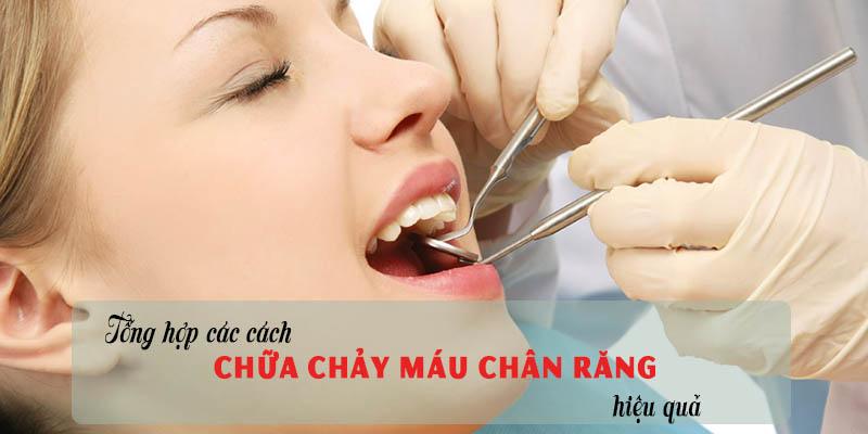 Tổng hợp cách chữa chảy máu chân răng hiệu quả nhất 1