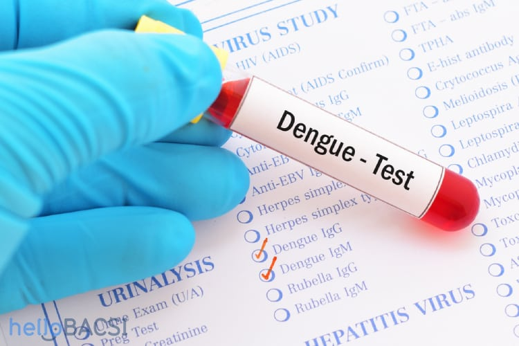Xét nghiệm sốt xuất huyết để biết bệnh hay không 1
