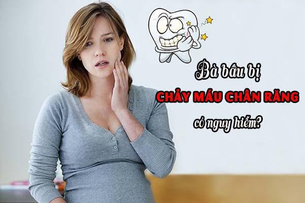 Chảy máu chân răng khi mang thai - Cách trị hiệu quả 1