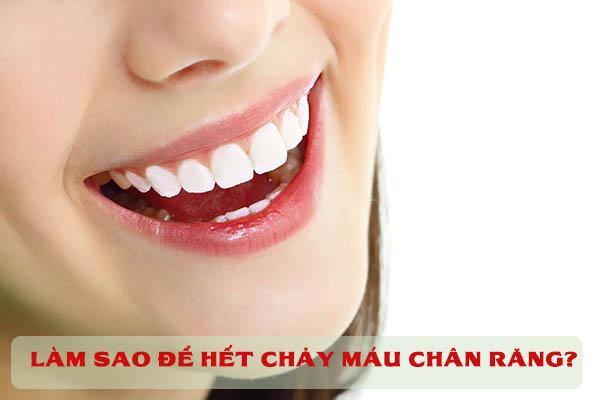 Làm sao để hết chảy máu chân răng? 1