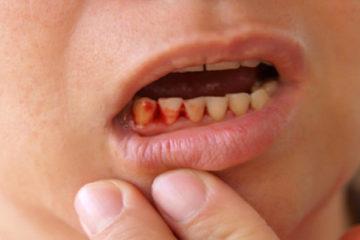 Chảy máu nướu răng – Nguyên nhân và cách khắc phục