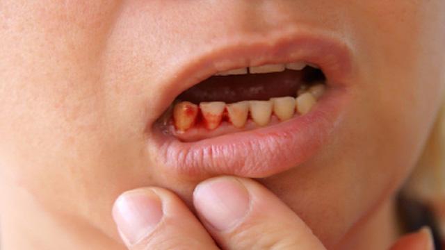 Chảy máu nướu răng - Nguyên nhân và cách khắc phục 1