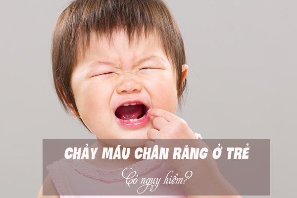 Chảy máu chân răng ở trẻ có nguy hiểm? 1