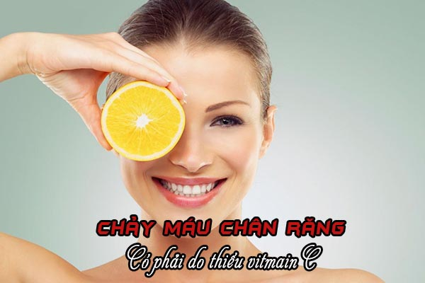 Chảy máu chân răng do thiếu vitamin C? 1