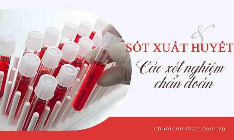Xét nghiệm sốt xuất huyết cần thiết chuẩn đoán bệnh 1