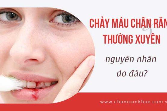 Chảy máu chân răng thường xuyên do đâu?