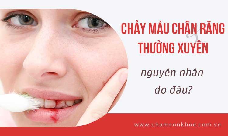 Chảy máu chân răng thường xuyên do đâu? 1