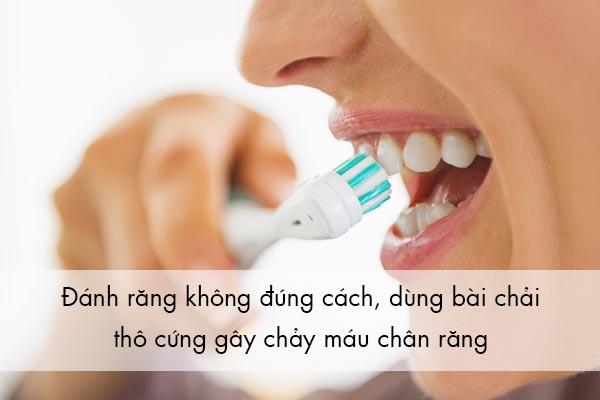 Nguyên nhân gây chảy máu chân răng thường xuyên 1